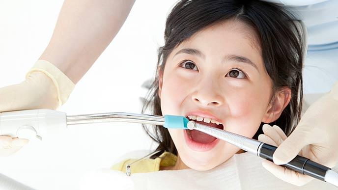 歯の状態をチェック