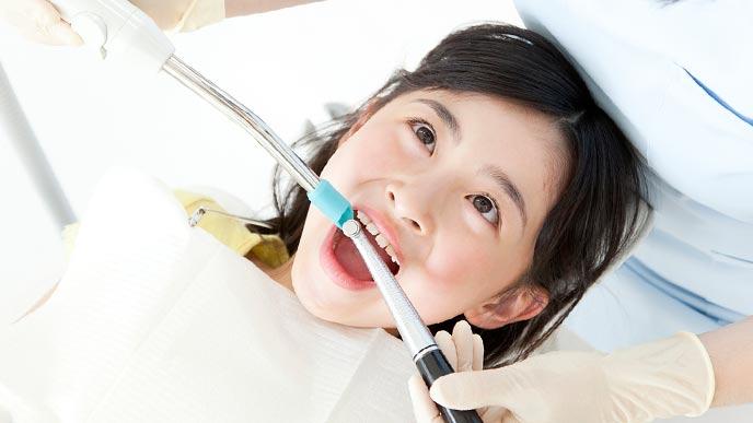 子供の歯科予防措置をする