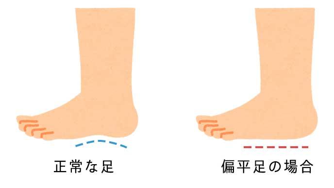 正常な足と偏平足な足を解説したイラスト